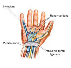 Carpal Tunnel Syndrome - Symptoms and Treatment - OrthoInfo - AAOS